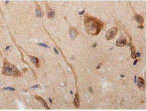 Immunohistochemistry (Formalin/PFA-fixed paraffin-embedded sections) - Anti-LRRC15 antibody (ab157484)
