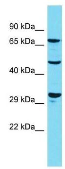 Western blot - Anti-DUSP7 antibody - N-terminal (ab157566)