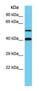 Western blot - Anti-C17orf85 antibody - C-terminal (ab157620)