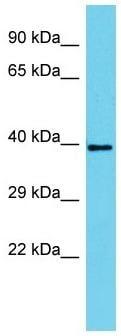 Western blot - Anti-SERTAD4 antibody - C-terminal (ab157633)