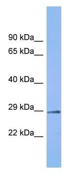 Western blot - Anti-C6orf203 antibody - C-terminal (ab157650)