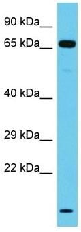 Western blot - Anti-NT5DC3 antibody - C-terminal (ab157662)