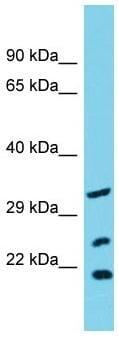 Western blot - Anti-SLC25A17 antibody - N-terminal (ab157787)