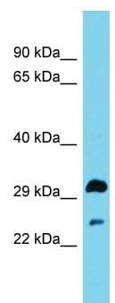 Western blot - Anti-HSD17B13 antibody (ab157797)