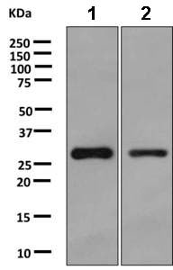 Western blot - Anti-HNMT antibody [EPR8311] (ab166609)
