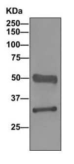 Western blot - Anti-TST antibody [EPR11646(B)] (ab166625)
