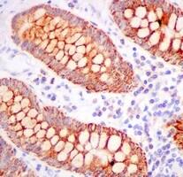 Immunohistochemistry (Formalin/PFA-fixed paraffin-embedded sections) - Anti-TST antibody [EPR11646(B)] (ab166625)