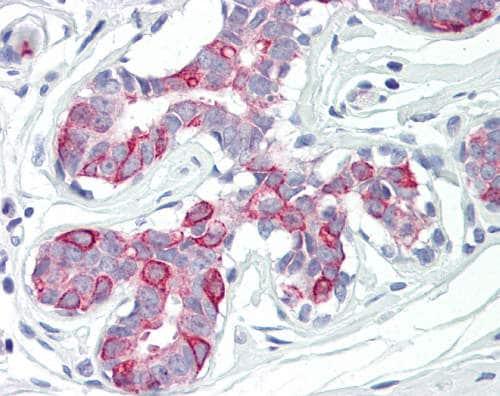 Immunohistochemistry (Formalin/PFA-fixed paraffin-embedded sections) - Anti-PKMYT1 antibody (ab166719)