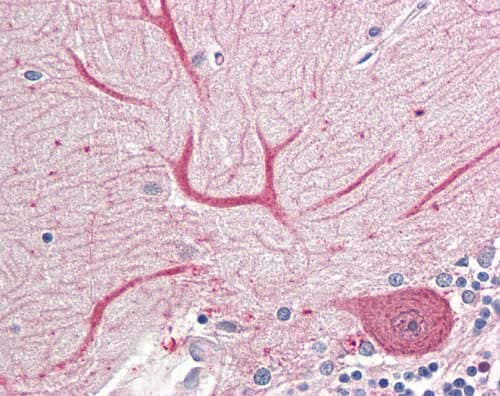 Immunohistochemistry (Formalin/PFA-fixed paraffin-embedded sections) - Anti-Keap1 antibody - N-terminal (ab166721)