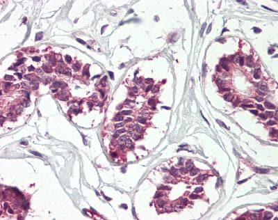 Immunohistochemistry (Formalin/PFA-fixed paraffin-embedded sections) - Anti-IGF2BP1 antibody (ab166798)