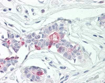 Immunohistochemistry (Formalin/PFA-fixed paraffin-embedded sections) - Anti-TNFAIP8 antibody (ab166804)
