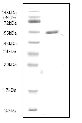 SDS-PAGE - PAFAH protein (His tag) (ab166875)