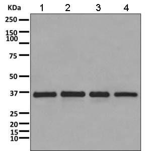 Western blot - Anti-CAPZA1 antibody [EPR11210] (ab166892)