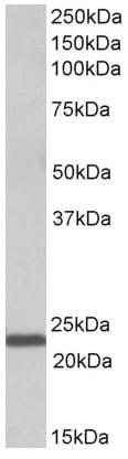 Western blot - Anti-IL15 antibody (ab166923)