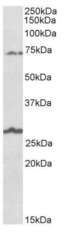 Western blot - Anti-SLC6A12  antibody (ab166933)