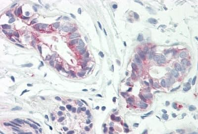 Immunohistochemistry (Formalin/PFA-fixed paraffin-embedded sections) - Anti-Rab34 antibody - C-terminal (ab167011)