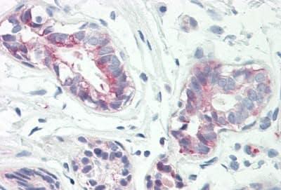 Immunohistochemistry (Formalin/PFA-fixed paraffin-embedded sections) - Anti-Rab34 antibody - C-terminal (ab167011)