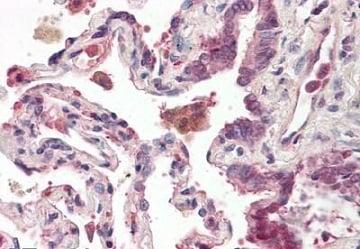 Immunohistochemistry (Formalin/PFA-fixed paraffin-embedded sections) - Anti-OXR1 antibody (ab167012)