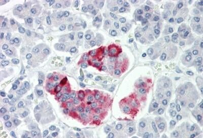 Immunohistochemistry (Formalin/PFA-fixed paraffin-embedded sections) - Anti-ANKRD20A3 antibody (ab167014)