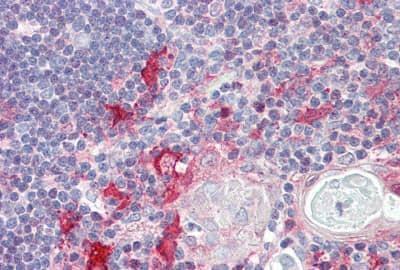 Immunohistochemistry (Formalin/PFA-fixed paraffin-embedded sections) - Anti-KIF13B antibody - N-terminal (ab167018)