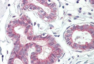 Immunohistochemistry (Formalin/PFA-fixed paraffin-embedded sections) - Anti-RPL31 antibody (ab167038)