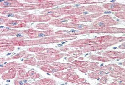 Immunohistochemistry (Formalin/PFA-fixed paraffin-embedded sections) - Anti-MPRIP antibody (ab167042)