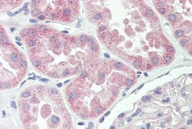 Immunohistochemistry (Formalin/PFA-fixed paraffin-embedded sections) - Anti-Spectrin beta 5 antibody (ab167044)