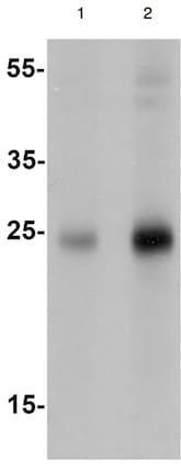 Western blot - Anti-SHISA4 antibody (ab167046)