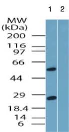 Western blot - Anti-Beta Arrestin 2 antibody (ab167047)