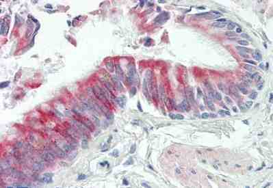 Immunohistochemistry (Formalin/PFA-fixed paraffin-embedded sections) - Anti-TRAPPC6A antibody (ab167061)