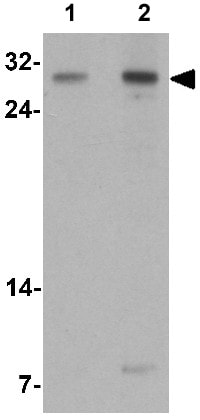 Western blot - Anti-TLX2 antibody - N-terminal (ab167102)
