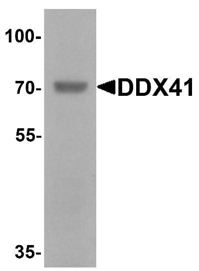 Western blot - Anti-DDX41 antibody - N-terminal (ab167126)
