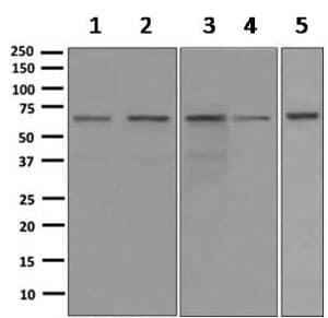 Western blot - Anti-RBM47 antibody [EPR9658] (ab167164)