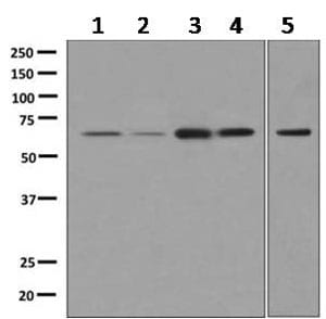 Western blot - Anti-NCOA62 antibody [EPR9989(B)] (ab167165)