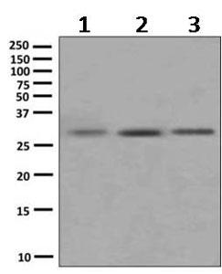 Western blot - Anti-Superoxide Dismutase 4 antibody [EPR9712] (ab167170)