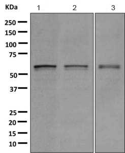 Western blot - Anti-TXNRD1 antibody [EPR10205] (ab167411)
