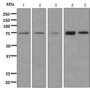 Western blot - Anti-XPD antibody [EPR9675] (ab167418)
