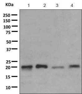 Western blot - Anti-TIMM22 antibody [EPR9973] (ab167423)