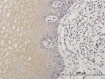 Immunohistochemistry (Formalin/PFA-fixed paraffin-embedded sections) - Anti-TGM1 antibody (ab167657)