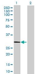Western blot - Anti-Hsd17b11 antibody (ab167686)