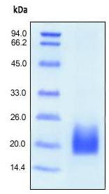 SDS-PAGE - CD3D protein (His tag) (ab167701)