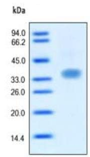 SDS-PAGE - Oncostatin M protein (Active) (ab167707)