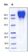 SDS-PAGE - HIV-1 gp120 (Du172.17 protein (His tag) (ab167715)