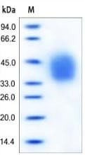 SDS-PAGE - IL4R protein (Active) (ab167726)