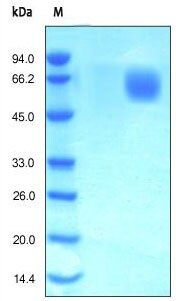 SDS-PAGE - FGFR4 protein (Active) (ab167751)