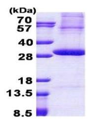 SDS-PAGE - Kallikrein 2 protein (His tag) (ab167831)