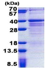 SDS-PAGE - PAG608 protein (His tag) (ab167842)