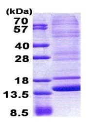 SDS-PAGE - Neuromedin B protein (His tag) (ab167850)