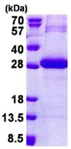 SDS-PAGE - PRSS3 protein (His tag) (ab167856)