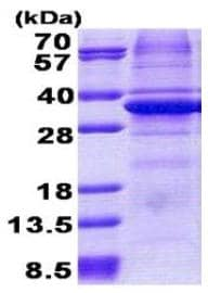 SDS-PAGE - CA11 protein (His tag) (ab167858)